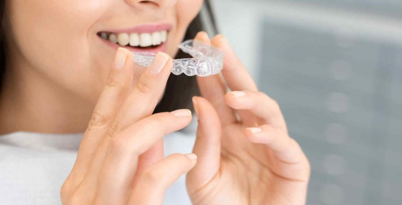 Is Invisalign Worth the Money?